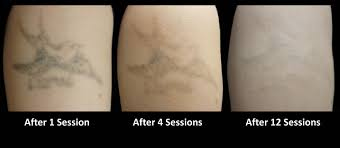laser tattoo removal blind pig tattoo club
