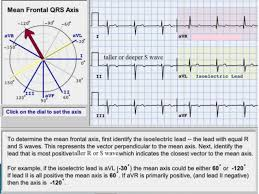 strain pattern ecg meaning ecg indication and interpretation