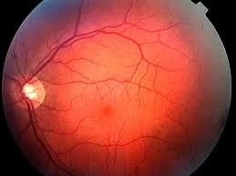 Diabetic Blindness Background Diabetic Retinopathy