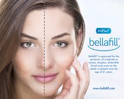 Face Mapping Acne Treating Acne Scars Fillers In Denver And Broomfield