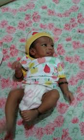 my baby born in very fair color see the pic after 1week she