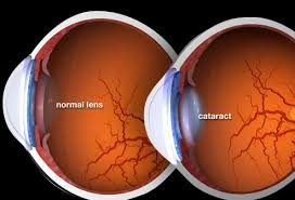 Can Cataracts Cause Blindness Pictures What Cataracts Look Like Causes Surgery And More