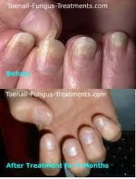 fingernail fungus causes picture symptoms and treatment