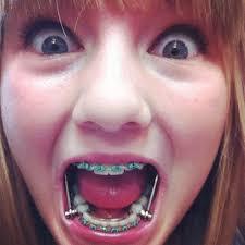 Braces Meme Girl - cute braces colors for teens girls beautiful smile pinterest