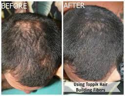 review toppik hair building fibers for balding and thinning hair
