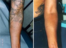 100 skin graft for tattoo removal tattoo removal new jersey