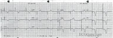 strain pattern ecg meaning deep symmetrical t wave inversions ecg guru instructor resources