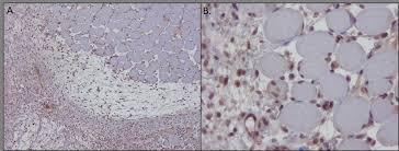 Tissue Renewal Regeneration And Repair Trends In Mesenchymal Stem Cells U0027 Applications For Skeletal Muscle