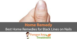 best home remedies for black lines on nails