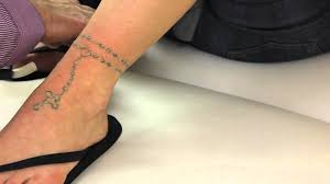 black ink ankle tattoo laser tattoo removal long island youtube
