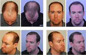 hair transplant month by month pictures before after hair transplant 6 months after youtube