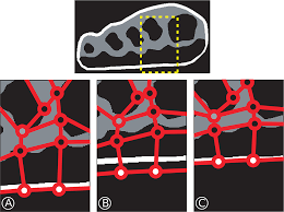 optimization of nonlinear hyperelastic coefficients for foot