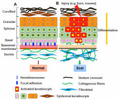 abnormalities in the basement membrane structure promote basal