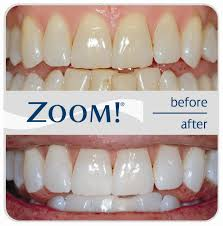 pro light dental whitening system reviews zoom teeth whitening costs reviews the dental guide