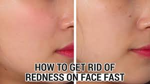 how to get rid of redness on face fast klairs midnight blue