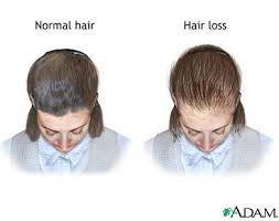 thinning hair in women on top of head female pattern baldness this pattern results in diffuse thinning