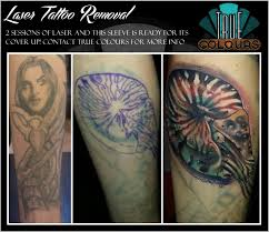 true colours tattoo studio preston laser tattoo removal