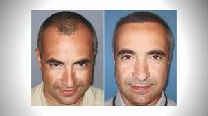 dhi hair transplant reviews dhi hair transplant before after at tracey bell youtube