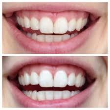 naturally whiten teeth in 5 minutes laurenda marie
