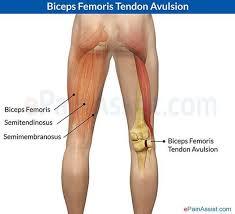 Fibular Avulsion Biceps Femoris Anatomy Choice Image Learn Human Anatomy Image