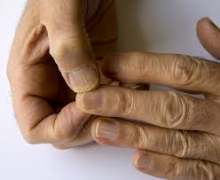 6 things your nails can say about your health u2013 health essentials