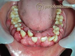 Cancer On Floor Of Mouth Pictures by Gingival Enlargement