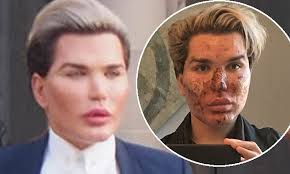 Seeking Ken Doll Human Ken Doll Rodrigo Alves Shows His New Look Daily Mail