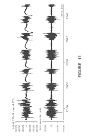 patent us20130096840 seizure detection methods apparatus and