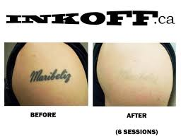 laser tattoo removal mrinkoff on pinterest