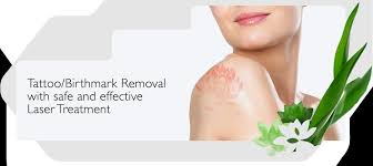 tattoo removal singapore ll cheong skin u0026 laser clinic
