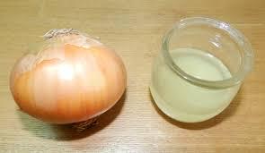 onion juice for hair growth u0026 remedies scalp remedies