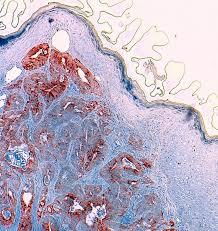 pilonidal cyst histology umbilical metastasis skin or sister marie joseph u0027s nodule
