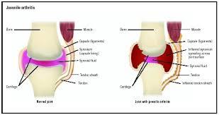 Tendon Synovial Sheath Juvenile Onset Arthritis