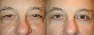 eyelid surgery cosmetic procedure to rejuvenate eyes u2013 adam