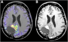 multimodality assessment of brain tumors and tumor recurrence