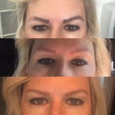 saline eyebrow tattoo removal reviews best tatto 2017