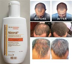 Dandruff And Hair Loss Ketoconazole Shampoo A Miraculous Anti Dandruff And Hair Loss Remedy