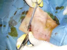prise de sang sur chambre implantable port à cath