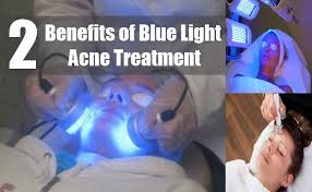 best blue light for acne 2 blue light therapy for acne how blue light therapy clears acne