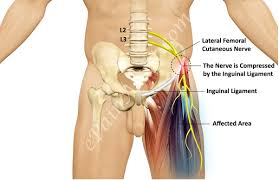 aerial yoga and meralgia paresthetica aka tight jeans syndrome