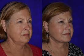 facelift u0026 neck lift plastic surgery santa rosa artemedica
