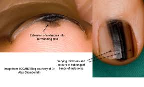 dermoscopy made simple acral and subungual melanoma