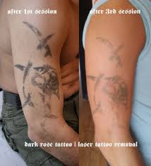 tattoo removal dark rose tattoo