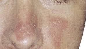 dermite du si e dermite séborrhéique sur le visage et le cuir chevelu nourrisson