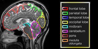Axial Mri Brain Anatomy Ct And Mri Interactive Atlas Of Cross Sectional Anatomy