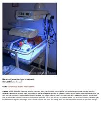 ultraviolet light therapy machine osram dulux blue 9w 71 uv a medical therapy jaundice dulux blue 9 71