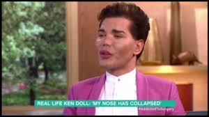 human ken doll before and after human ken doll says plastic surgery has made him an u0027icon u0027 daily