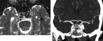 Ct Anatomy Of Brain Ppt Imaging Lesions Of The Cavernous Sinus American Journal Of