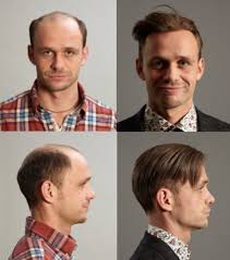 male pattern baldness hairstyles london hair replacement male pattern baldness thinning expert