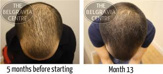 best hairstyle for alopecia general hair thinning regrow hair